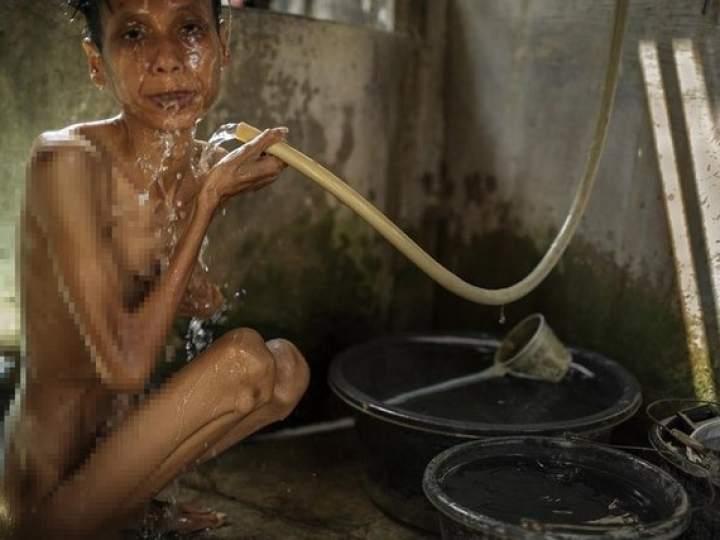 Endonezya Akıl Hastanesinden Şok Görüntüler 14