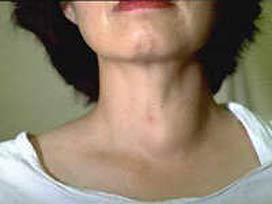 Tiroid Zeka Geriliğine Neden Olabilir