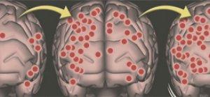 Orgazm Sırasında Beynimizde Neler Oluyor?