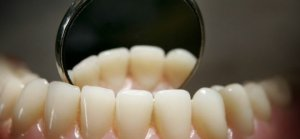 Yaşlanınca Dişler Neden Daha Uzun Görünür?