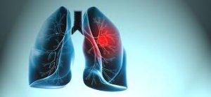 Kanserden Korunmak İçin Bunları Yapın