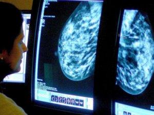 İngiltere'de Nüfusun Yarısı Kanser Olacak