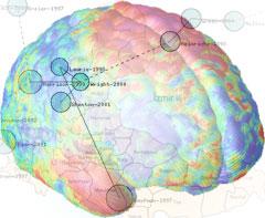 Şizofreninin Nedeni Hakkında Yeni Buluş
