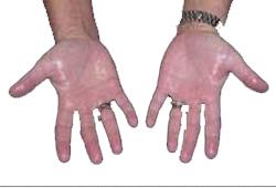 Elleriniz terliyorsa hastalık belirtisi
