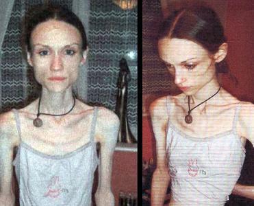 İngiliz Kız Anoreksiyayı Yendi