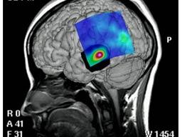 Bu Kromozon Beyin Tümörü Riskini Arttırıyor