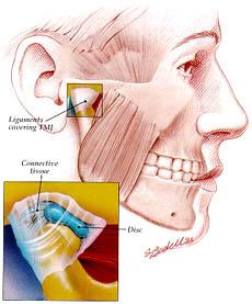 Stres Çeneye ve Dişlere  Zarar veriyor