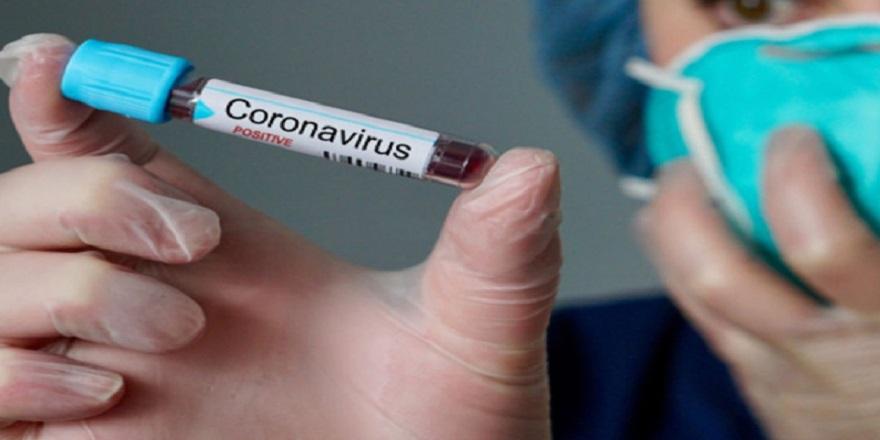 Corona virüs testi pozitif çıkan bebek hayatını kaybetti