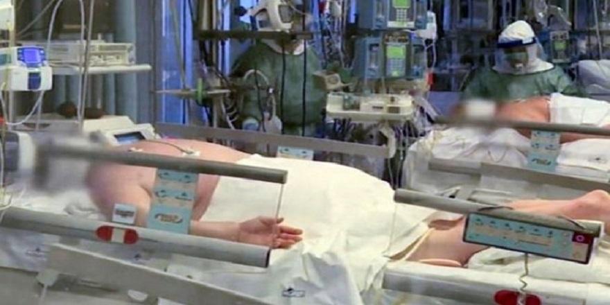 Covid-19 hastaları neden yüzükoyun yatırılıyor?