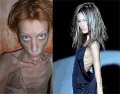 Beş adımda anoreksiya testi