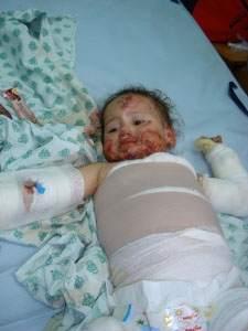 Bu Bebeği İsrail Yaktı /GALERİ