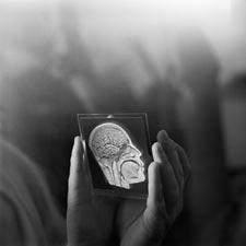 Psikiyatride Elektroenselafografinin Yeri!