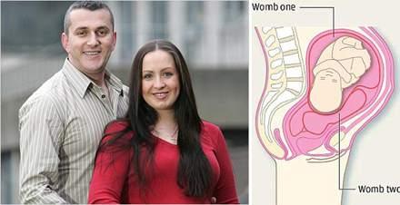 İki rahimli, 2 vajinalı kadın
