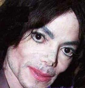 Vitiligo, Gençleri Depresyona Sokuyor