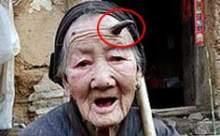 101 yaşındaki kadının boynuzu çıktı !
