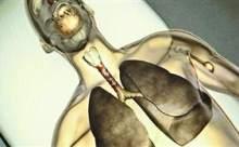 Dünyada ilk kez soluk borusu nakli yapıldı