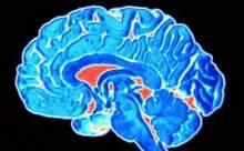 Beynimiz Yatay Etkileşimle Çalışıyor!