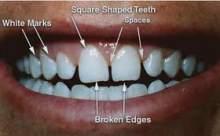 Bu Besinler Dişleri Karartıyor