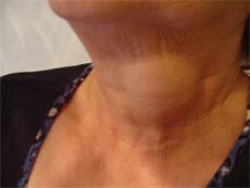 Tiroid hastalığı kadınlar için 5 kat daha tehlikeli