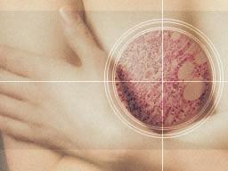 Doğum meme kanseri riskini azaltıyor
