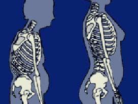 3 kadından biri osteoporoz hastası