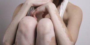 Vitiligo Hastaları İçin Yaz Önerileri