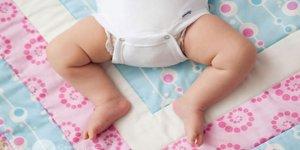 Bebeklerde Kalça Çıkıklığının 4 Nedeni