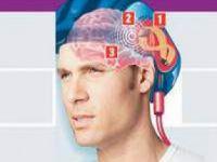 Ergenlik'te Başa Alınan Darbeler IQ'yü Düşürüyor