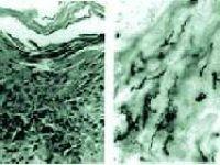 Sifiliz - Frengi Hastalığı Nedir?