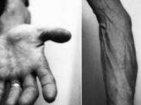 Yaşlanan Adam Sendromu Nedir?