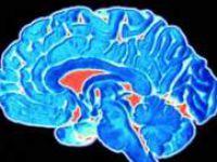 Beynimiz Tanıdıklara Torpil Geçiyor