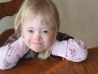 Bebeklerde down sendromu riski