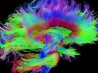 İnsan Beyni'nin Renkli Görüntüsü!
