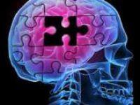 Üç Boyutlu Beyin Taraması