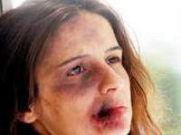 ABD'li Psikolog: Kadına Şiddete Ceza ve Terapi Uygulansın