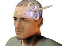 Transkranial Manyetik Stimülasyonun Psikiyatride Tanısal Amaçlı Kullanımı